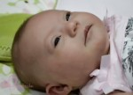 Ein Baby mit Down-Syndrom. Foto: Himileanmedia / Wikimedia Commons (CC BY-SA 3.0)