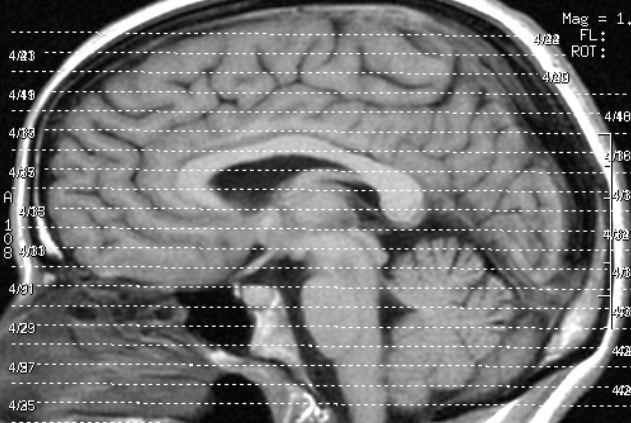 Das menschliche Gehirn ist hochkomplex - auch wenn man es nicht immer glauben mag. Foto: Liz Henry / Flickr (CC-BY-ND-2.0)