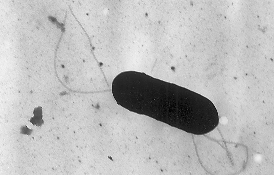 Listerien haben offenbar im März Brechdurchfall-Erkrankungen im Kreis Paderborn ausgelöst. Foto: Centers for Disease Control and Prevention / Wikimedia Commons