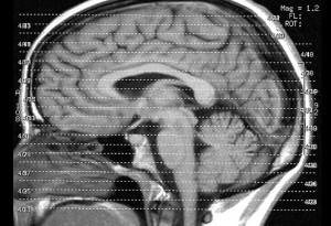 Veränderungen des Intelligenzqoutient stehen in Beziehung zu Veränderungen von Hirnstrukturen. Foto: Liz Henry / Flickr (CC-BY-ND-2.0)