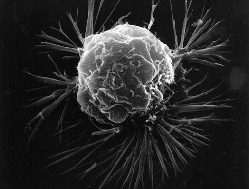 Bestimmte Bakteriengifte im Tumor können die Körperabwehr stimulieren, so dass sie den Krebs angreift. Foto: Wikimedia Commons