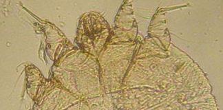 Klein und gemein: Die Sarcoptesmilbe. Foto: Kalumet / Wikimedia Commons (CC BY-SA 3.0)